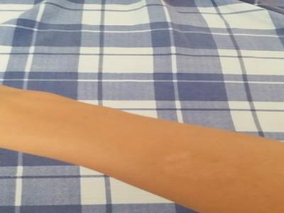 点滴型牛皮癣怎么治疗